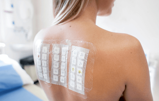 Skin testing for allergies with patch testing on woman's back