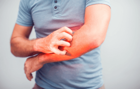 Man with itchy skin allergy scratching arm